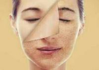 کانال سلامت پوست و مو